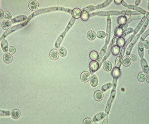 candida albicans dans les urines
